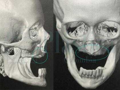 Candidato Implante Dentale Cigomatico