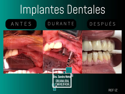 Foto Implante Dental Cigomatico