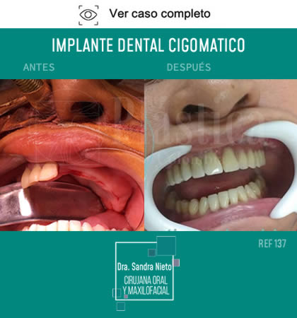 Foto Implante Dental Cigomático Resultado