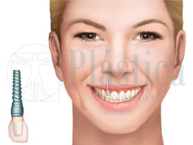 Foto Implante Dental