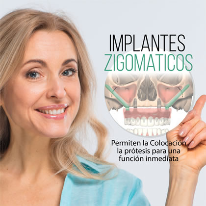 Implante Dental Cigomatico