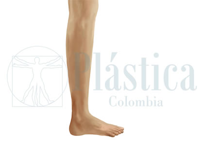 Aumento grosor pierna