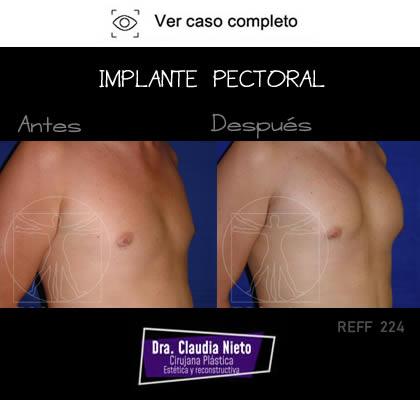 Implante Pectoral
