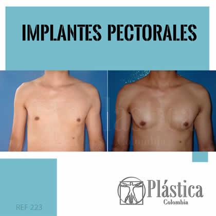 especialista implante pectoral