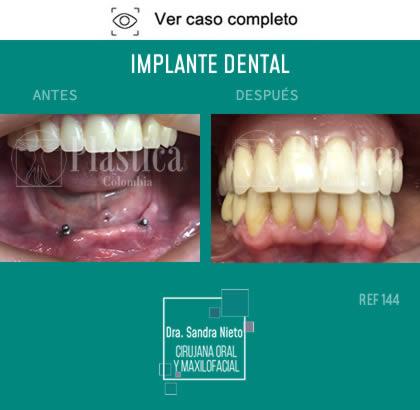 Foto Implantes Dentales Resultado