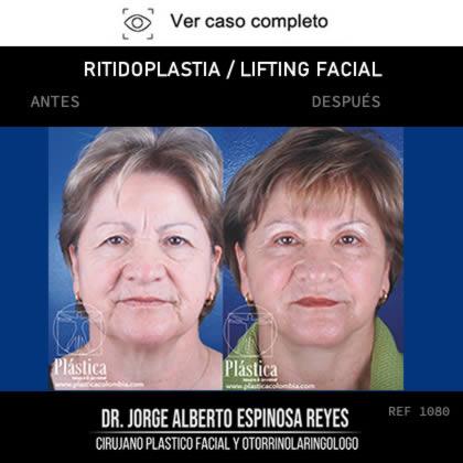 Ritidoplastia Antes y Después
