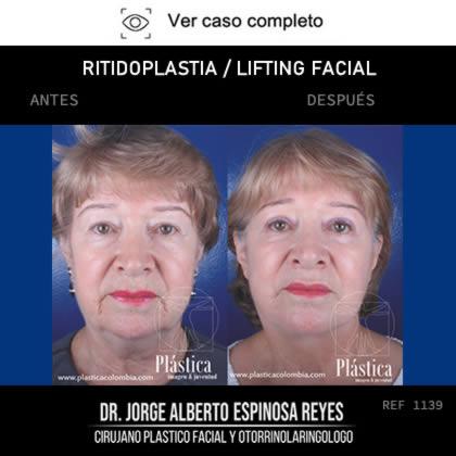 Rejuveneciiento Facial Antes y Después