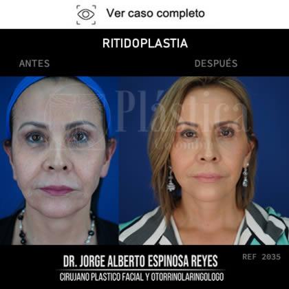 Lifting Facial Antes y Después