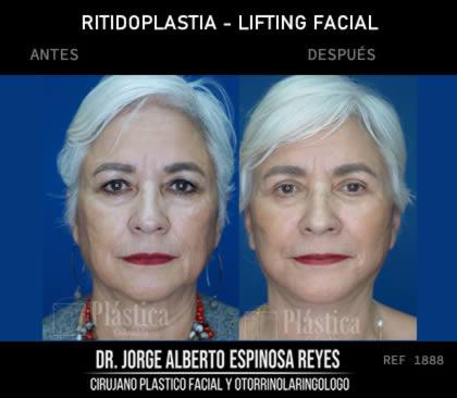 Lifting Facial Resultado