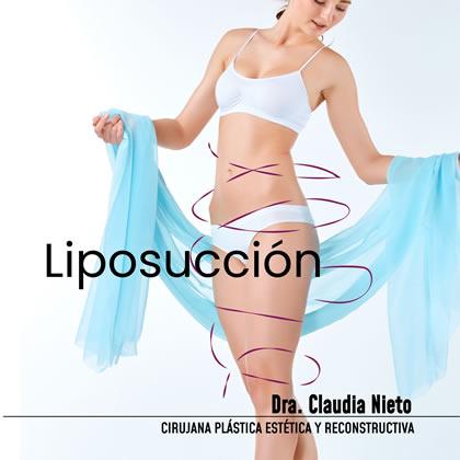 Lipoescultura Cirugía