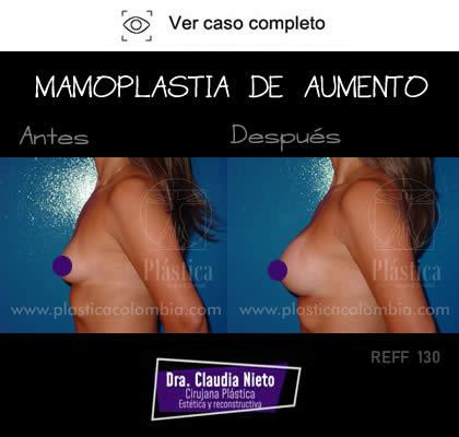 Foto Mamoplastia de Aumento