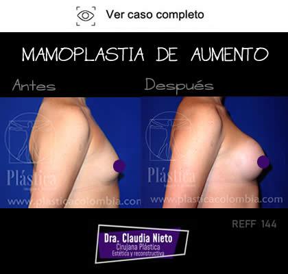 Cirugía Mamoplastia de Aumento