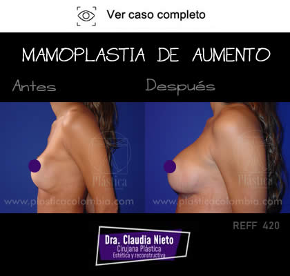 Mamoplastia Antes Después