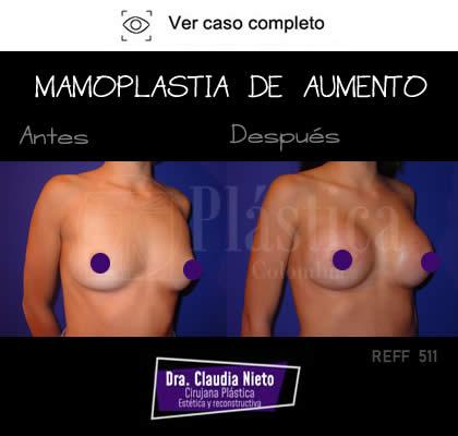 Mamoplastia Aumento Resultado