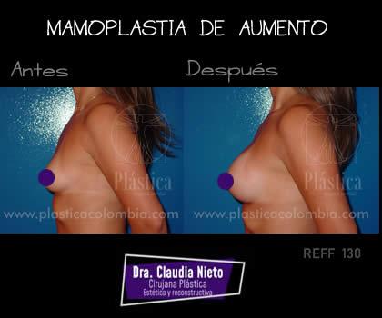 Foto Aumento Mamoplastia