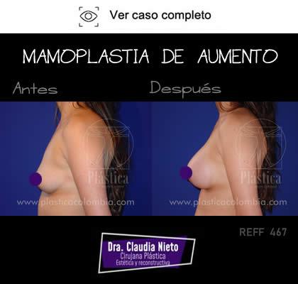 Mamoplastia Precio