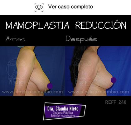 Foto Reducción Mamaria