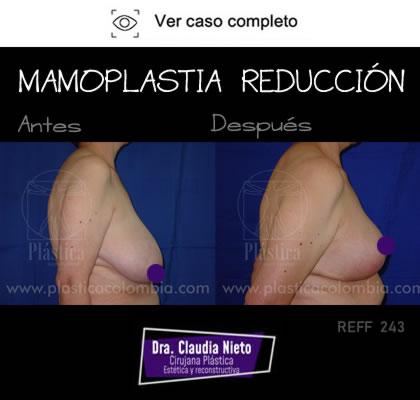 Foto Mamoplastia de Reducción