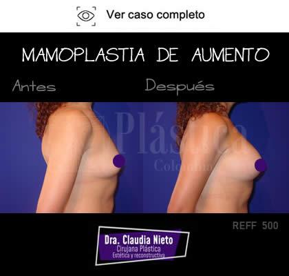 Mamoplastia Resultado