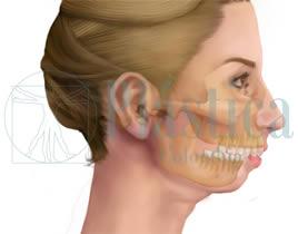 Retrognatia Mandibular