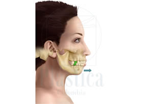 Corrección mandíbula