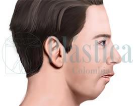 Corrección mandíbula retraída
