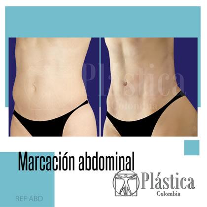 marcación abdominal resultado