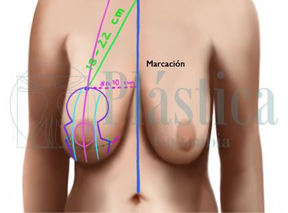 marcacion mastopexia