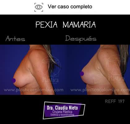 Mastopexia con Prótesis Mamarias