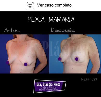 Mastopexia Prótesis Mamarias