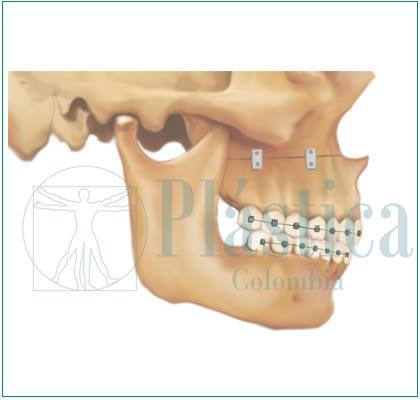 Corrección maxilar superior