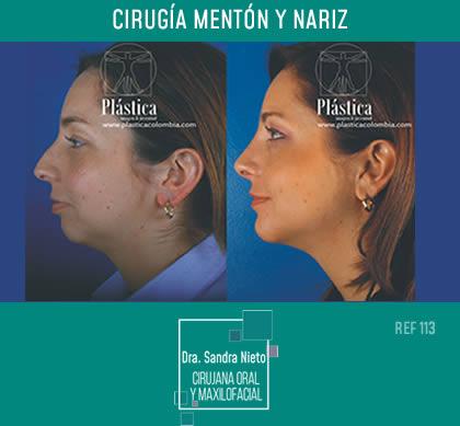 Foto Mentoplastia Mentón Avance