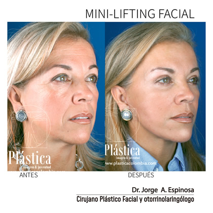 Minilifting Facial Antes y Después