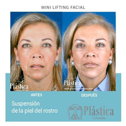 Minilifting Facial Resultado