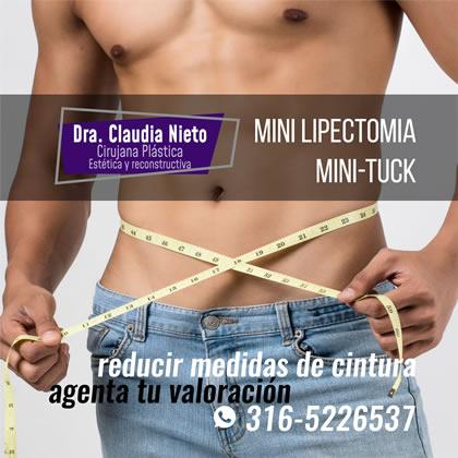 Minilipectomia