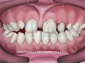 ortodoncia frenillo labial