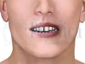ortodoncia diastemas