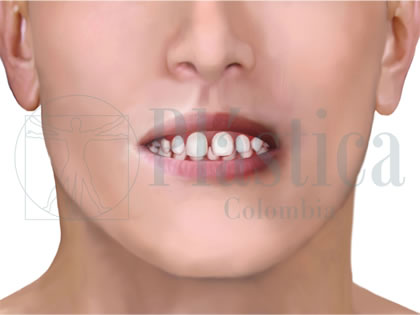 ortodoncia maloclusión