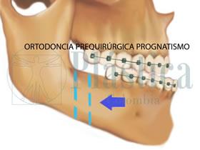 ortodoncia prognatismo