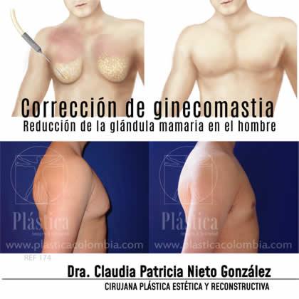 Paciente Ginecomastia