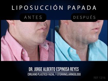 Paciente liposucción papada