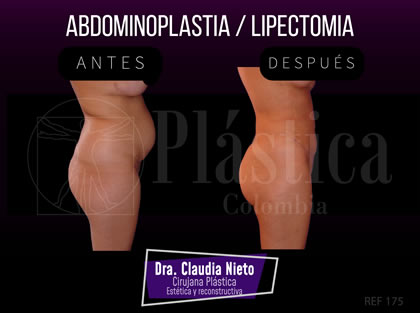 Abdominoplastia - Lipectomia