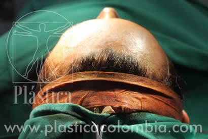 Frontoplastia de reducción