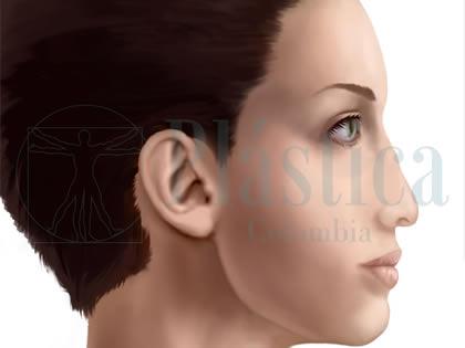 Ilustración Nariz Hendida