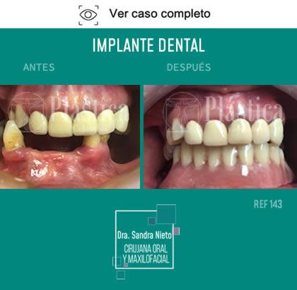 Foto Prótesis Dental Resultado