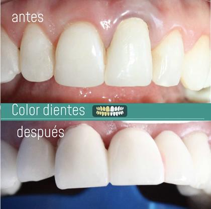 Color dental