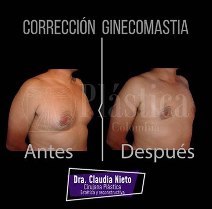 Corrección Ginecomastia