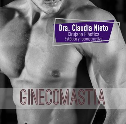 Ginecomastia correctiva