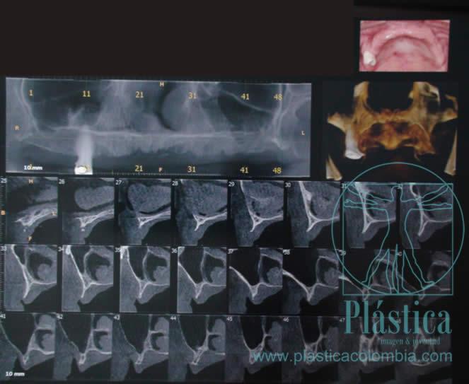 Radiografía implante