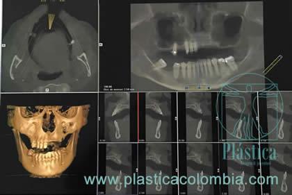 Foto Tomografía preoperatoria
